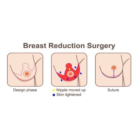 Breast Reduction Surgery process