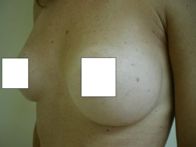 BreastAug15-after